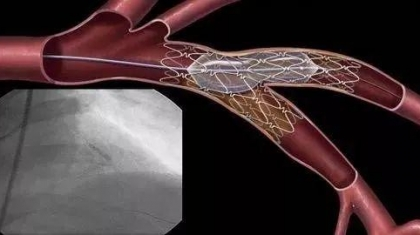 Femtosecond Laser Cutting Of Medical Stent